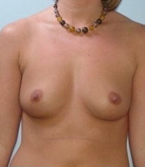 Breast Augmentation before 621533