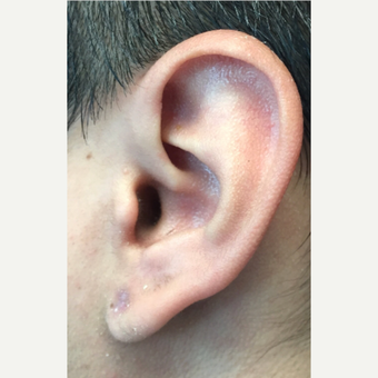 25-34 year old man treated with Scar Removal Keloid