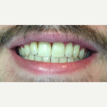 25-34 year old man treated with Dental Implants after 3432697