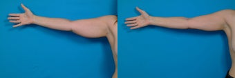 32-year-old woman treated with Liposuction. before 3287423