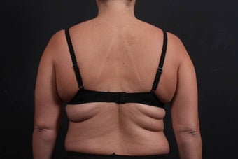 This 39 year old female underwent the Bra Line Back Lift procedure before 752180