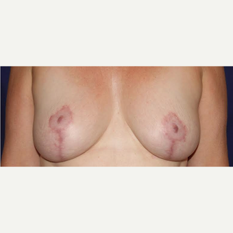 60 Year Old Breast Aug With Lift after 3583393