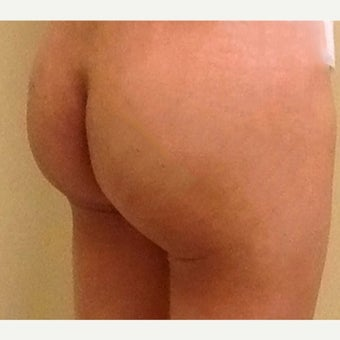 55-64 year old woman treated with liposuction and fat-transfer to buttocks after 1727491