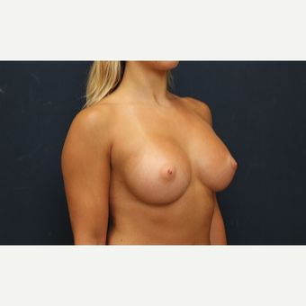 25-34 year old man treated with Breast Augmentation after 3344951