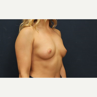25-34 year old man treated with Breast Augmentation before 3344951