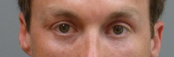 35-44 year old man treated with Restylane after 2195807