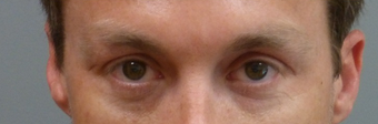 35-44 year old man treated with Restylane before 2195807