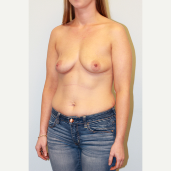 25-34 year old woman treated with Breast Augmentation before 3027305