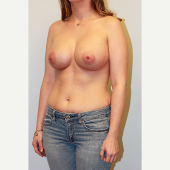 25-34 year old woman treated with Breast Augmentation after 3027305