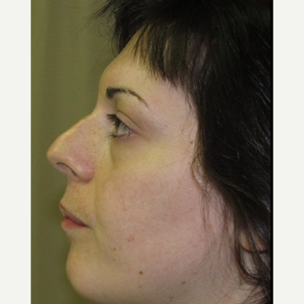 25-34 year old woman treated with Facial Feminization Surgery before 2052740