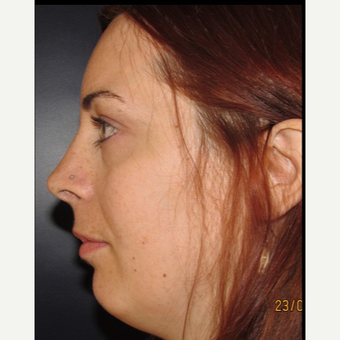 25-34 year old woman treated with Facial Feminization Surgery after 2052740