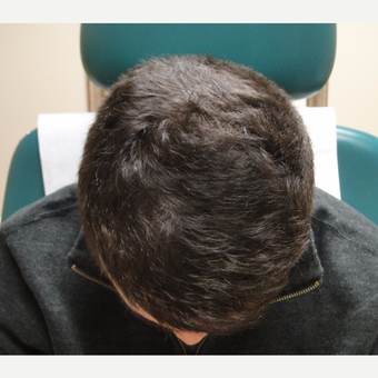 35-44 year old man treated with PRP for Hair Loss after 2732229