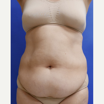 55-64 year old woman treated with Tummy Tuck before 3165543