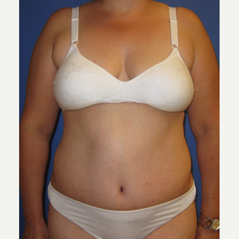 55-64 year old woman treated with Tummy Tuck after 3165543
