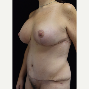 45-54 year old woman treated with Mommy Makeover after 3304927