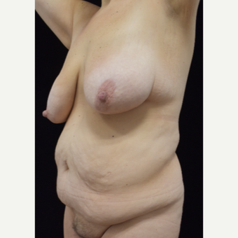 45-54 year old woman treated with Mommy Makeover before 3304927