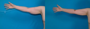 58-year-old woman treated with Liposuction. before 3287596