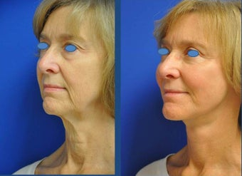 austin face lift (high smas, dual plane with platysmaplasty, selective fat grafting, upper bleph after 911935