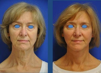 austin face lift (high smas, dual plane with platysmaplasty, selective fat grafting, upper bleph before 911935