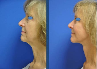 austin face lift (high smas, dual plane with platysmaplasty, selective fat grafting, upper bleph 911935
