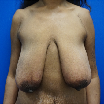 45-54 year old woman treated with Breast Lift before 3393067