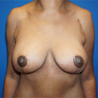 45-54 year old woman treated with Breast Lift after 3393067