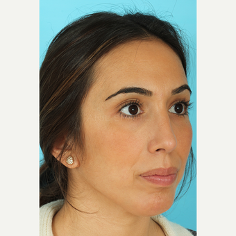 25-34 year old woman treated with Rhinoplasty after 3691133