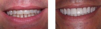 44 year old male treated for unnatural bulky looking veneers