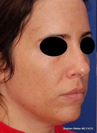 25-34 year old woman treated with Rhinoplasty before 3624188