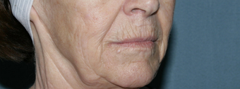 Face and Neck Fraxel repair with C02/Erbium lasers for upper lip wrinkles before 104646