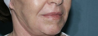Face and Neck Fraxel repair with C02/Erbium lasers for upper lip wrinkles after 104646