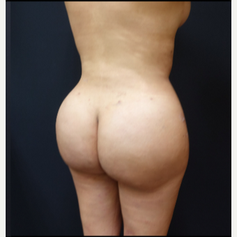 25-34 year old woman treated with Butt Augmentation after 3286186