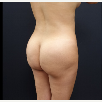 25-34 year old woman treated with Butt Augmentation before 3286186