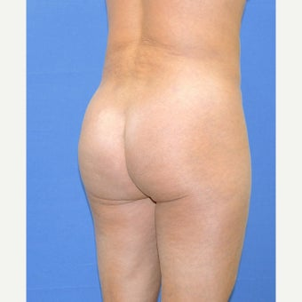 45-54 year old woman treated with Brazilian Butt Lift after 2105672