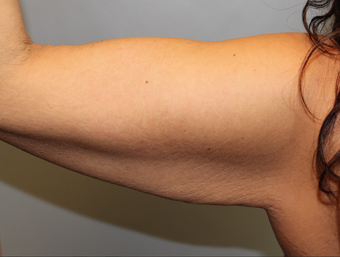 Brachioplasty  ( Arm Lift ) after Weight Loss 1277296