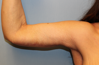 Brachioplasty  ( Arm Lift ) after Weight Loss after 1277296
