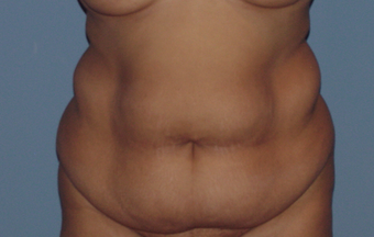 Abdominoplasty (tummy tuck) in the fuller patient before 845751