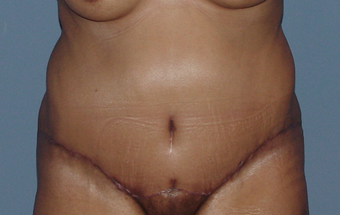Abdominoplasty (tummy tuck) in the fuller patient after 845751