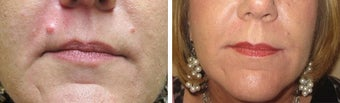 Mole Removal photos before 951875