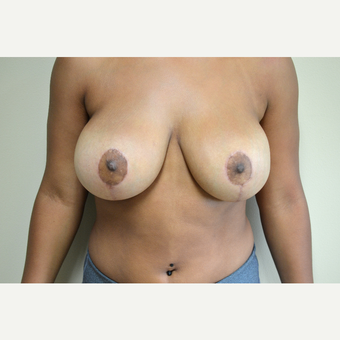 18-24 year old woman treated with Breast Reduction after 3741439