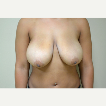 18-24 year old woman treated with Breast Reduction before 3741439