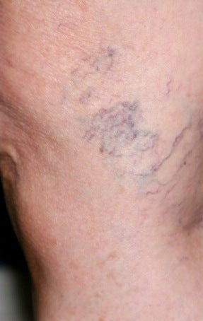 Sclerotherapy before 370424