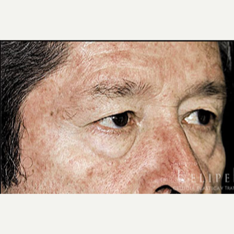 55-64 year old man treated with Eyelid Surgery before 3413507