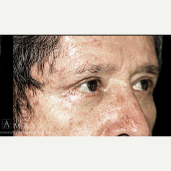 55-64 year old man treated with Eyelid Surgery after 3413507