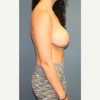 25-34 year old woman treated with Breast Lift with Implants after 3452905