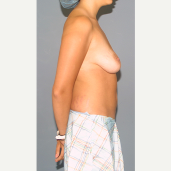 25-34 year old woman treated with Breast Lift with Implants before 3452905