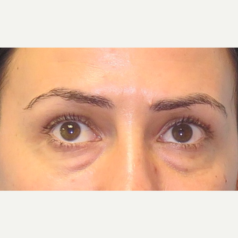 35-44 year old woman treated with Eyelid Surgery before 3550248