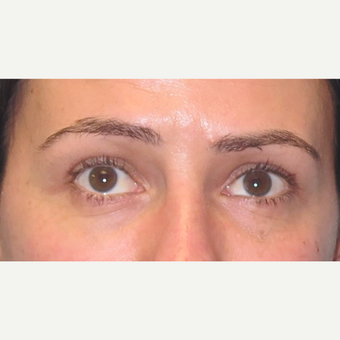35-44 year old woman treated with Eyelid Surgery after 3550248