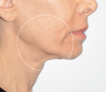 55-64 year old woman received the Liftique Skin Tightening Procedure