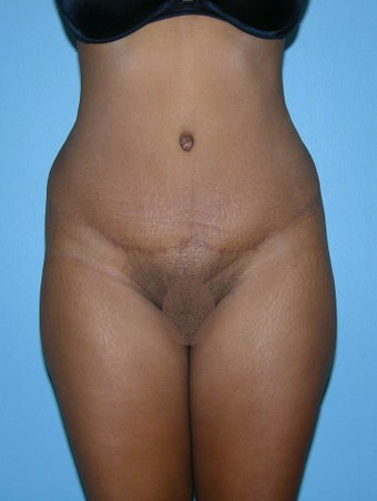 Abdominoplasty, Tummy Tuck after 1286968